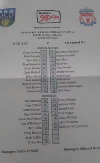 Liverpool u21 ucd